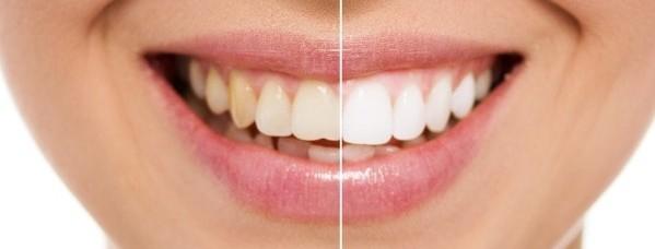 Ein strahlend weißes Lächeln von Zahnarztpraxis P. Tomovic in Frankfurt Westend